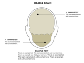 Head Neck slides for powerpoint